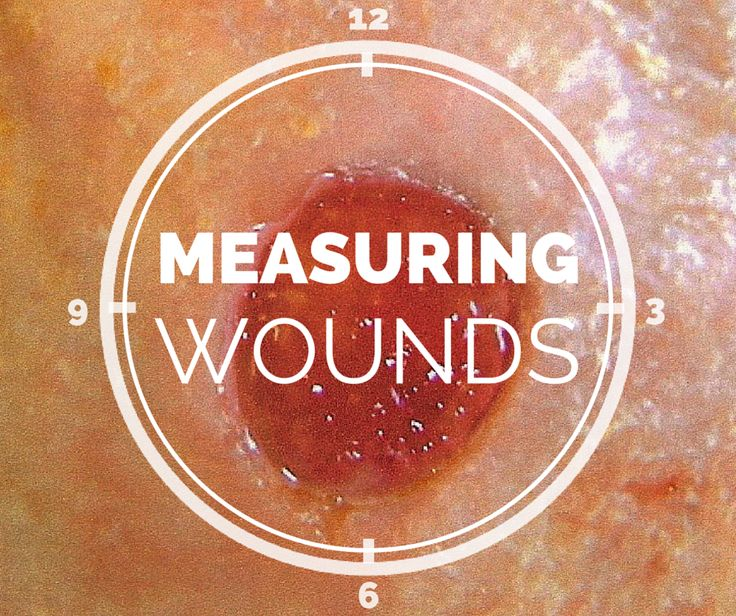wound care documentation sample